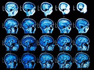 alzheimer-parkinson-szklerozis