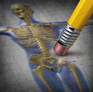 csontritkulas-10