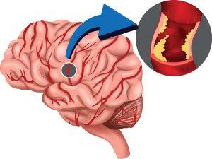 agyi-stroke-infarktus